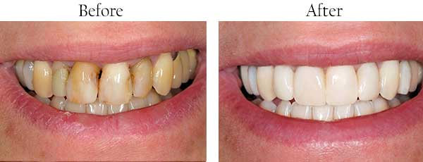 Long Beach Before and After Dental Implants