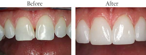 Roslyn Heights Before and After Veneers